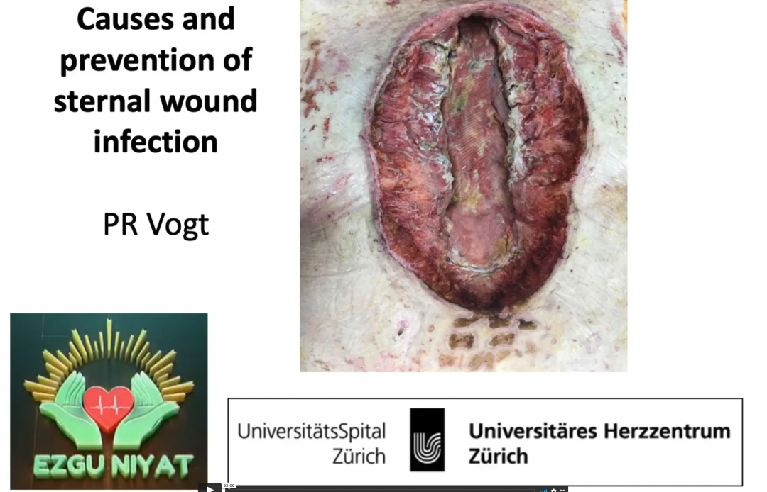 09_Vogt_Sternal wound infection