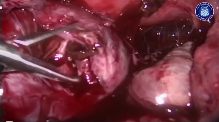 Laparoscopic Treatment in Endometriosis