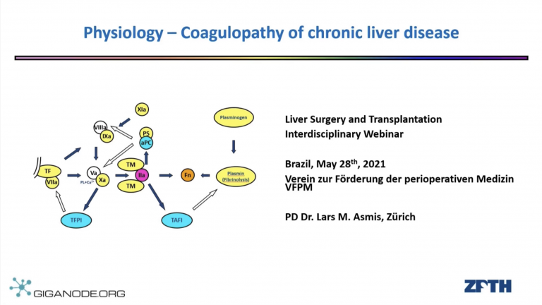 Physiology - Coagulopathy of Chronic Liver Disease